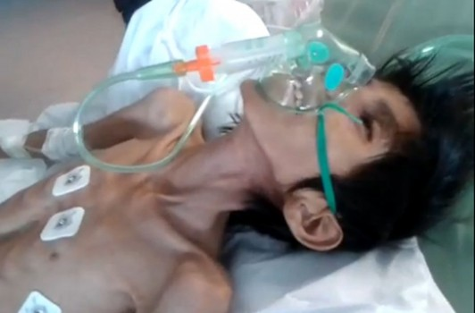 Foto: La triste imagen de un joven que muere de hambre en un país de riquezas infinitas.-