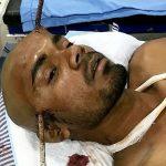 Un obrero cayó a un pozo y un hierro le atravesó la cabeza